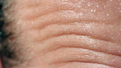 Hőguta, vagy hőkimerülés? Veszélyes összekeverni, így ismerd fel a tüneteket