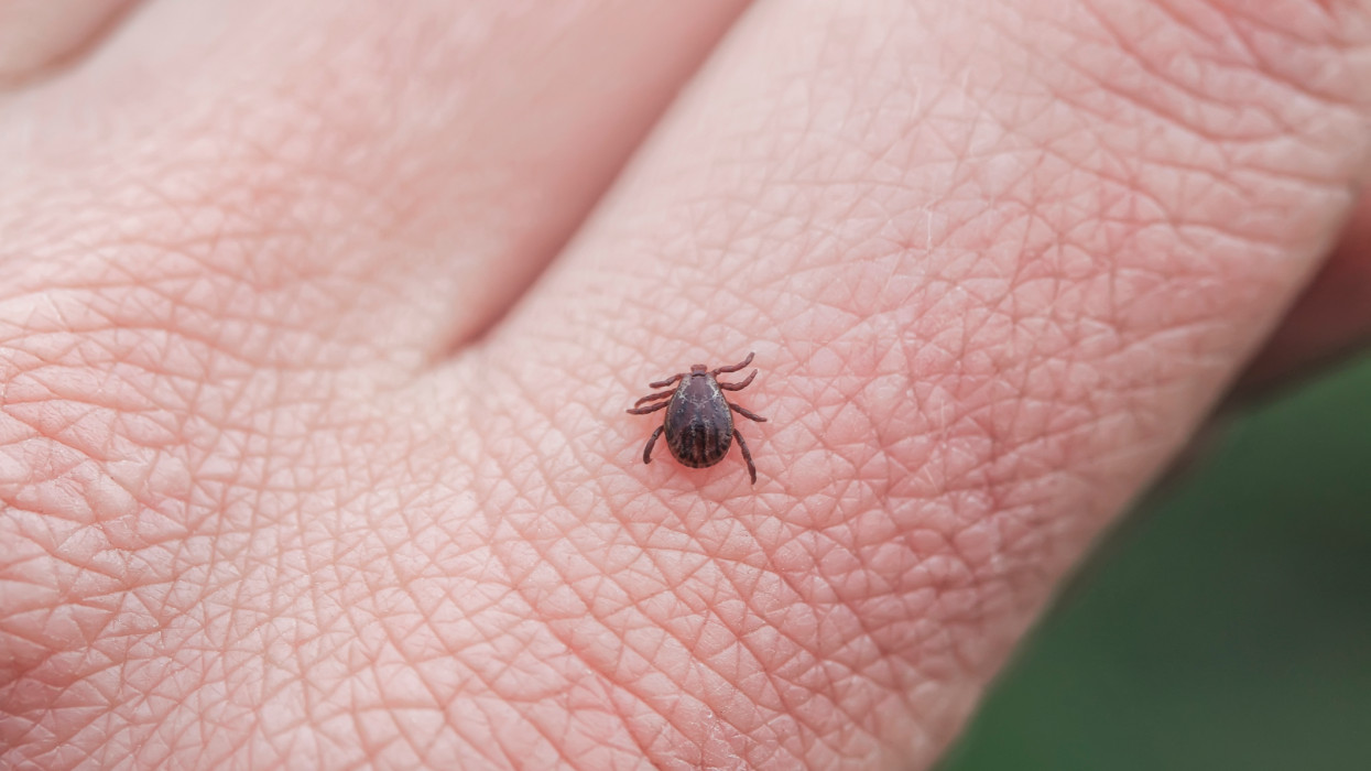 dangerous infectious insect mite crawls on the skin of the fingers of the human hand to suck the blood