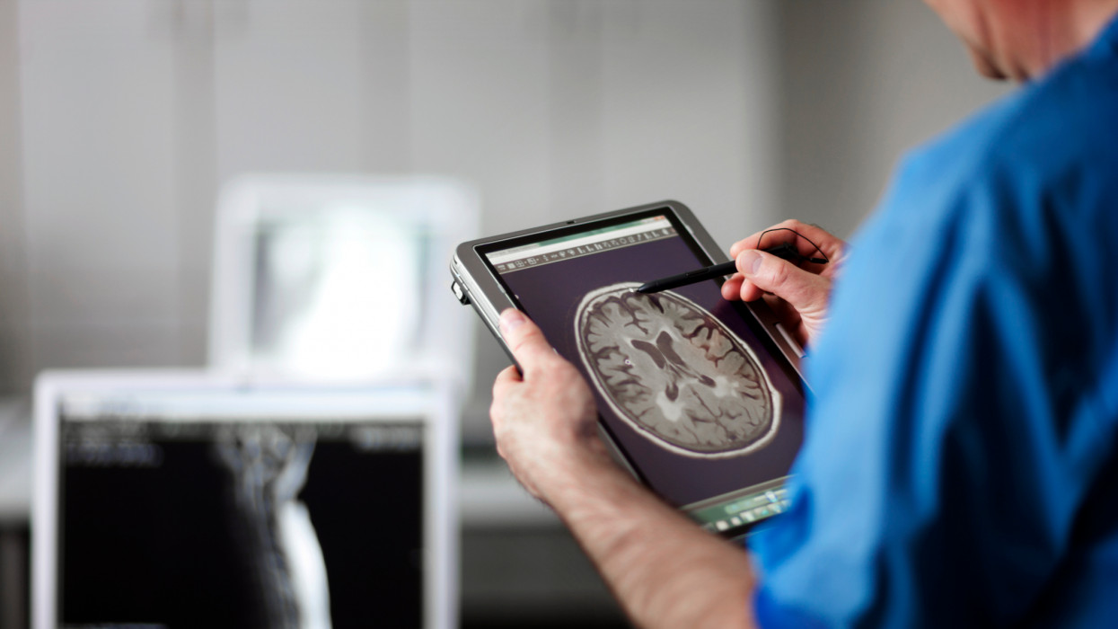 computer with MR-scan of human brain